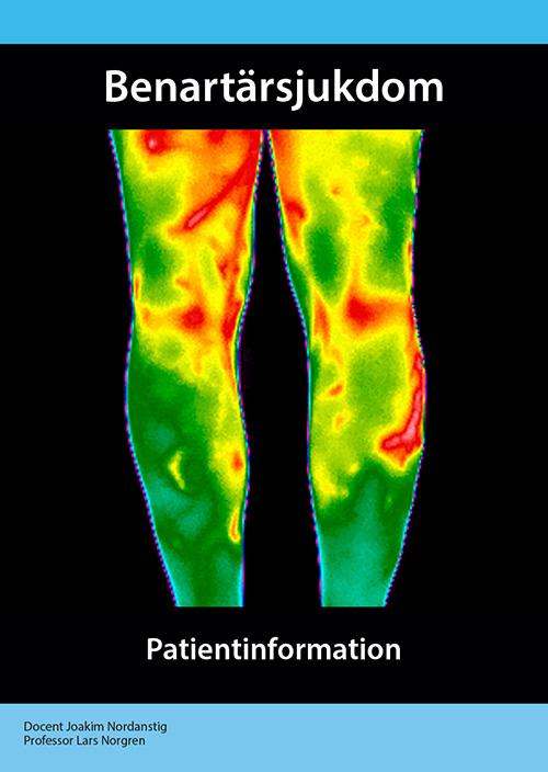 Benartärsjukdom – patientinformation